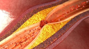 Artery-clogging saturated fat myth debunked