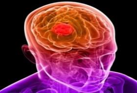 IMMUNOTHERAPY ATTACKS BRAIN CANCER