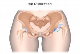 Congenital Hip Dislocation Treatment