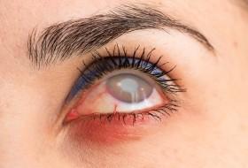 Detached Retina Treatment
