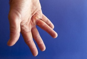 Dupuytren\'s Contracture