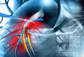 Angioplasty treatment
