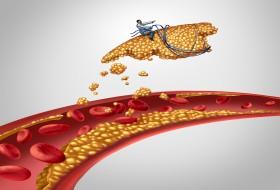 Atherectomy treatment