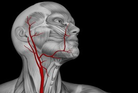 Carotid Artery Dissection Treatment