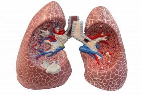 Humanheal - Pulmonary Embolism Treatment