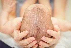 Craniosynostosis Treatment
